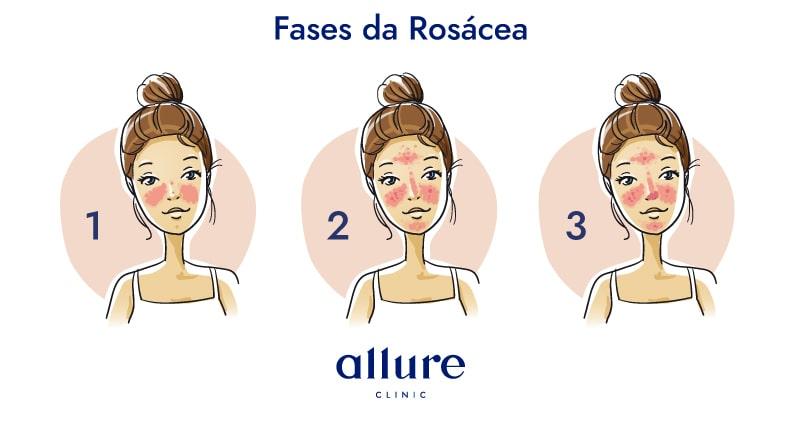 allure-rosacea