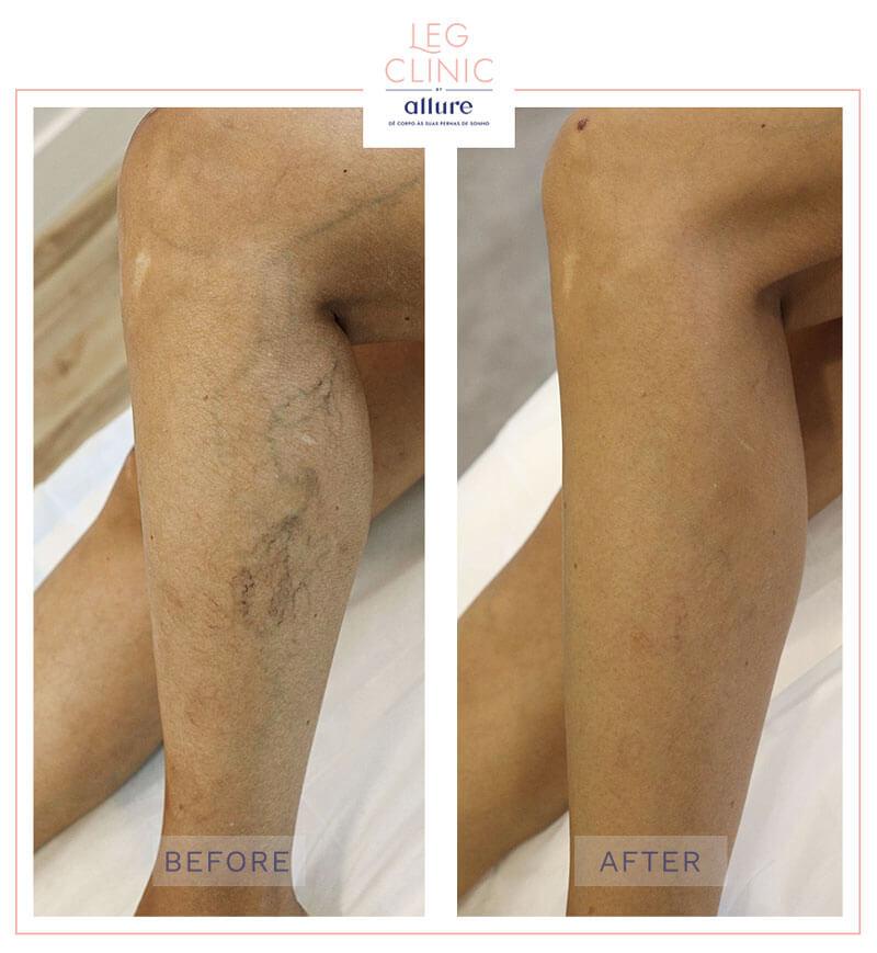 Leg Clinic - Allure - Clinica no Porto - Caso 02