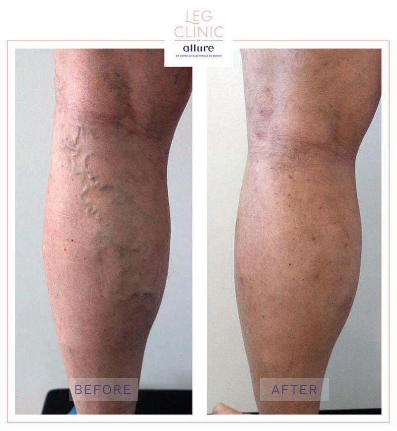 Leg Clinic - Allure - Clinica no Porto - Cirurgia de varizes - Fleboextrações Caso 04