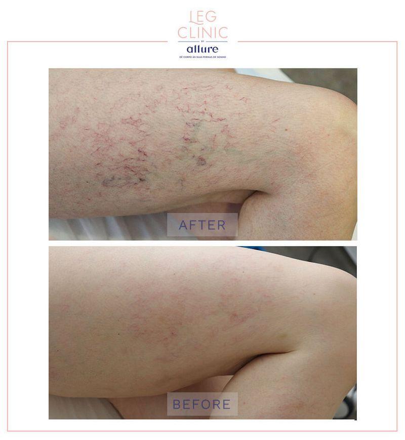 Leg Clinic - Allure - Clinica no Porto - Caso 05